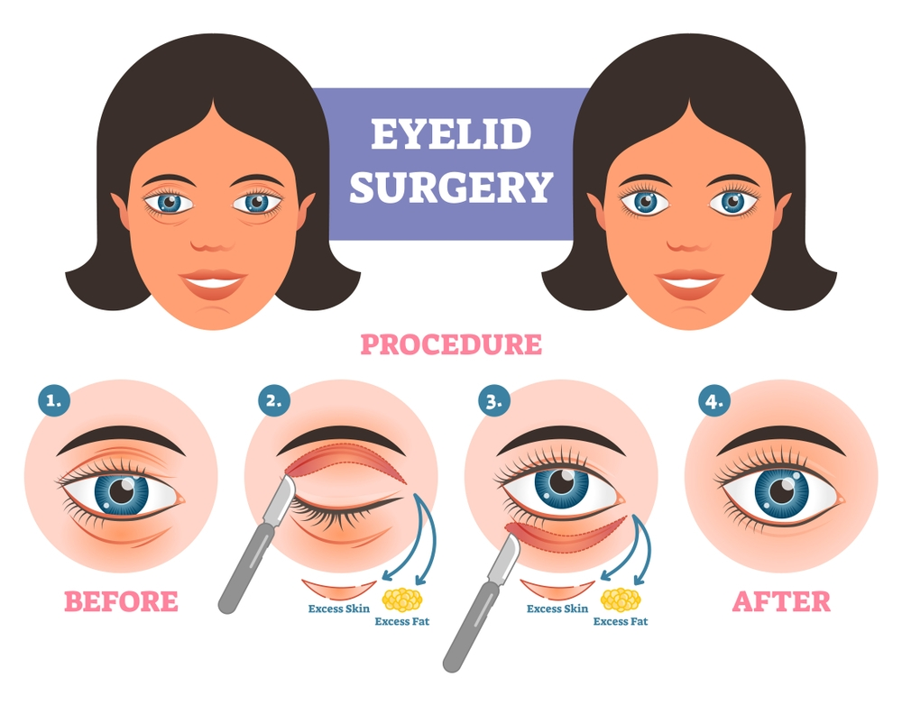 blepharoplasty (eye lid surgery procedure)