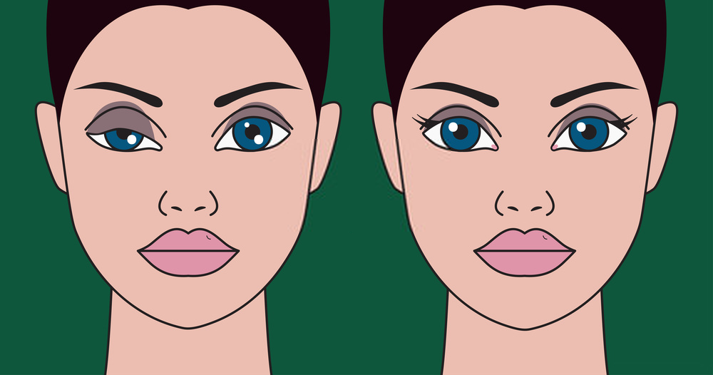 before and after ptosis repair
